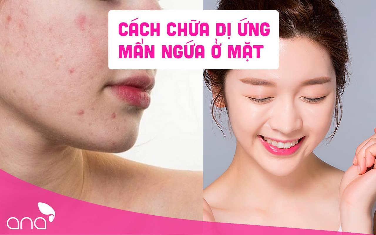 cách chữa dị ứng mẩn ngứa trên mặt